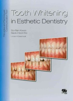 Tooth whitening in esthetic dentistry book cover