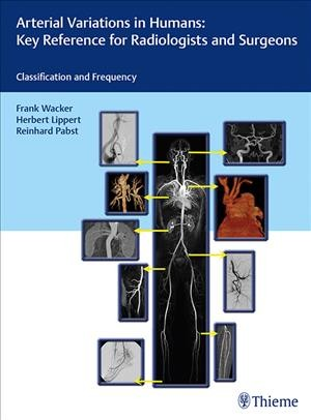 Arterial Variations in Humans