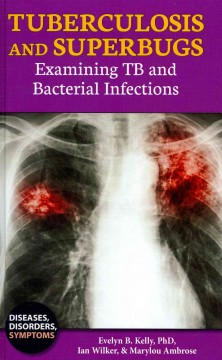 Tuberculosis and superbugs : examining TB and bacterial infections cover image
