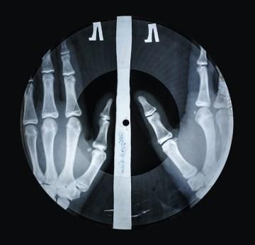 X-ray audio : the strange story of Soviet music on the bone