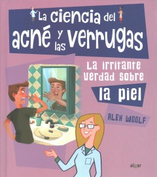 La ciencia del acne y las verrugas / The Science of Acne and Wards : La Irritante verdad Sobre La Piel/ The Irritating Truth About the Skin