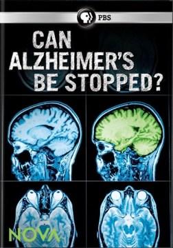 ¿Se puede detener el Alzheimer ?, portada del libro